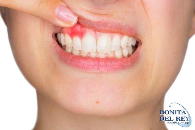 gum-disease-bonita-del-rey