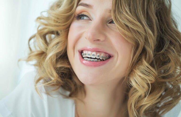 dental-patient-wearing-braces