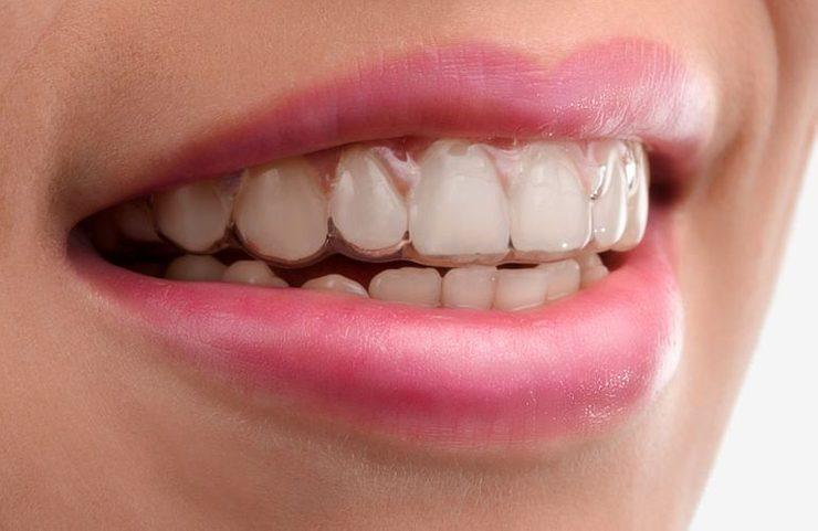 dental-patient-wearing-invisalign-1