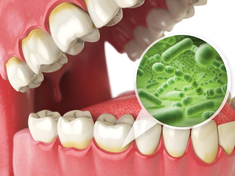 bacterias and viruses around tooth.